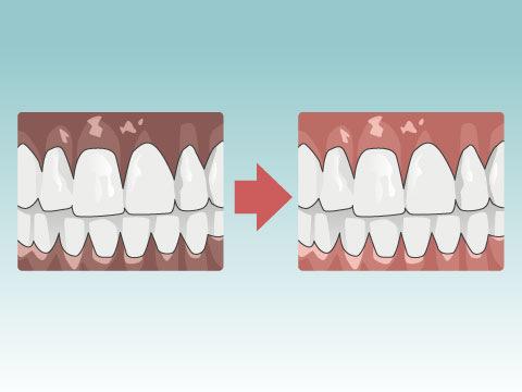 メラニン除去(歯茎の審美治療)