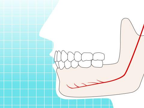 下歯槽神経(カシソウシンケイ)