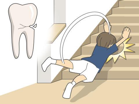 歯牙破折(シガハセツ)