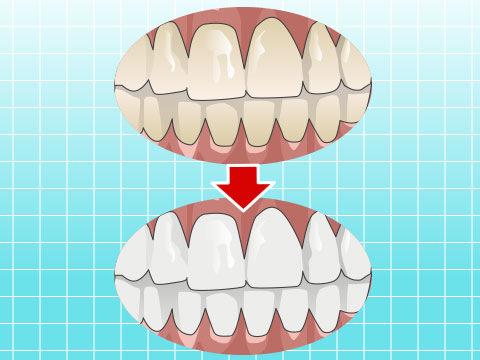 歯牙漂白(シガヒョウハク)
