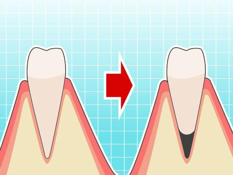 歯根吸収(シコンキュウシュウ)