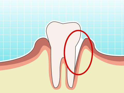 歯周ポケット(シシュウポケット)