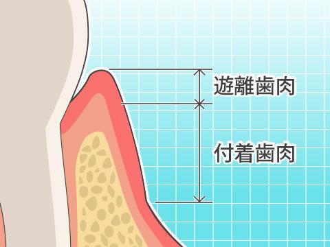 歯肉(シニク)
