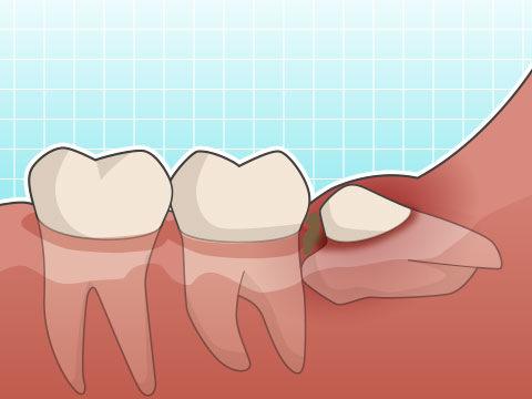 智歯周囲炎(チシシュウイエン)