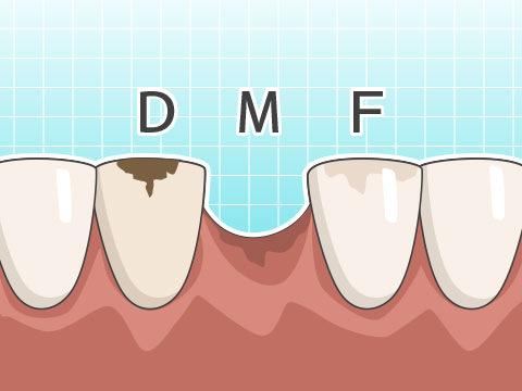 DMF指数(ディーエムエフシスウ)