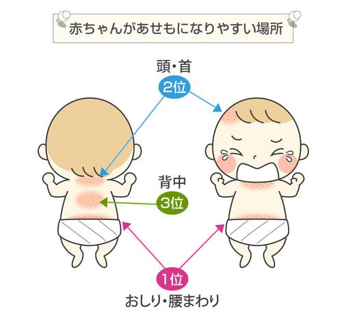 赤ちゃんがあせもになりやすい体の場所