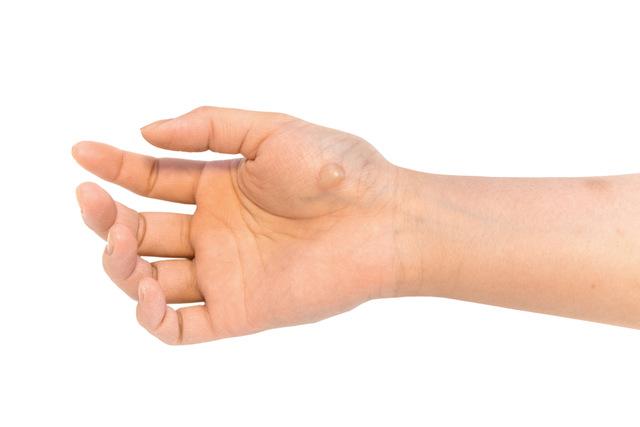 やけどの湿潤療法の処置3:水ぶくれがあるやけどの処置