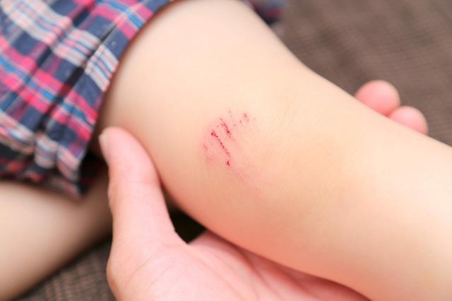 湿潤療法でのすり傷の処置