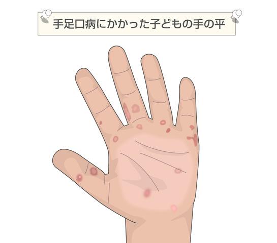 発疹の出る夏風邪「手足口病」