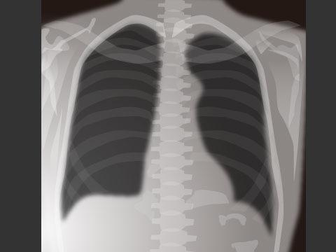胸部X線検査について