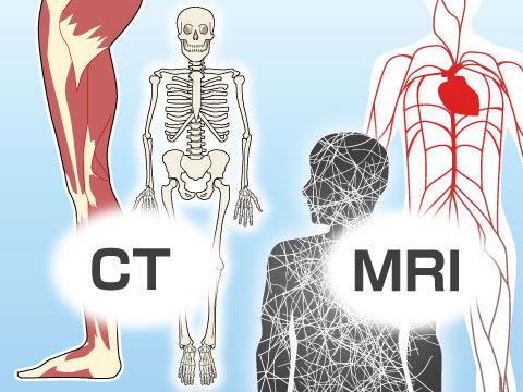 CT検査とMRI検査の使い分け