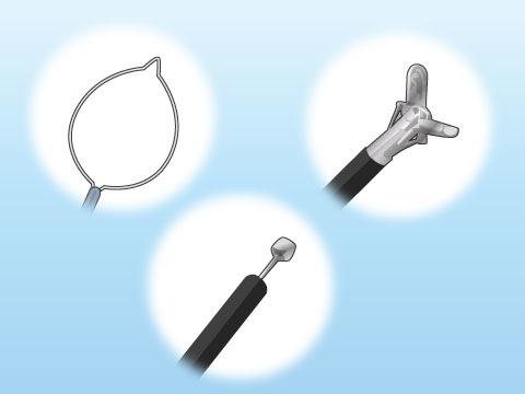 内視鏡検査の種類