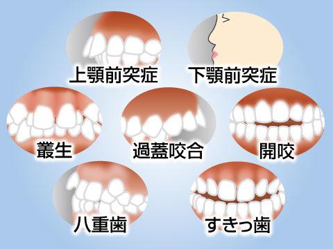 矯正歯科で治療する歯並び