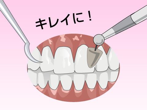 歯科衛生士の業務
