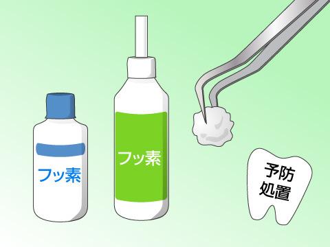 歯科予防処置