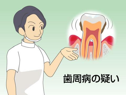 歯ぐきからの出血
