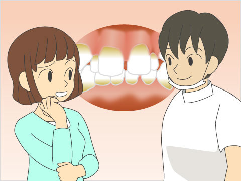 歯の汚れ、歯並び