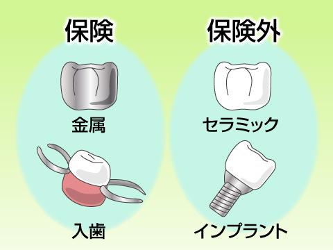 治療に使用する材料