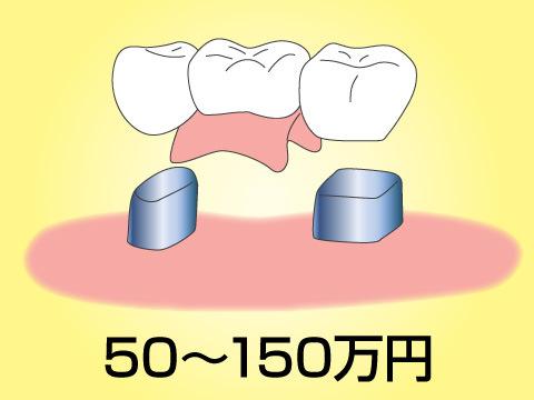 高額な歯科治療の例