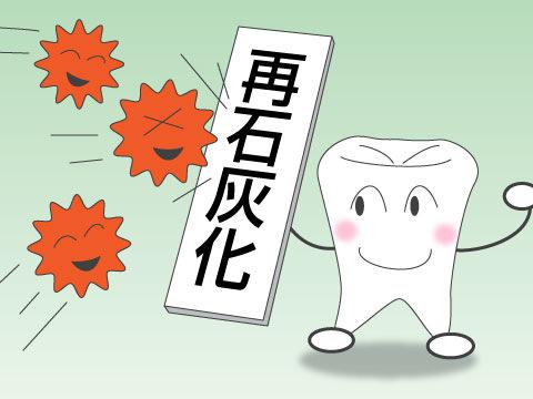 虫歯の原因・メカニズム