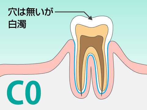 C0の虫歯