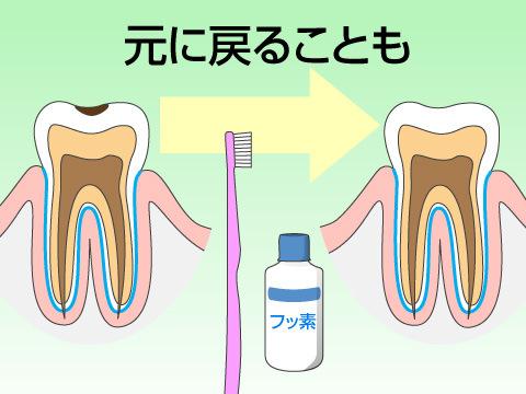 できるだけ削らない虫歯治療へ