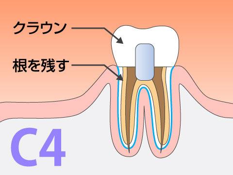 C4の虫歯