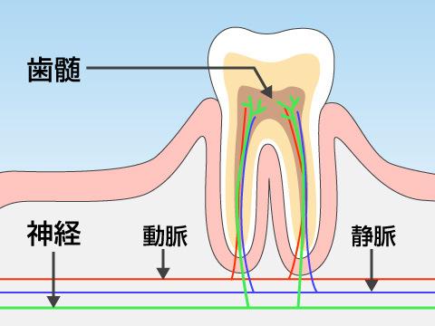 神経まで達した虫歯の症状と治療法