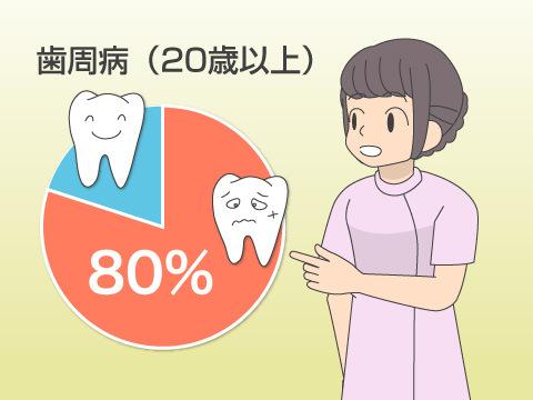 日本の成人の約80%が歯周病!