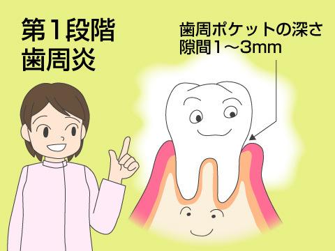 (第一段階)歯周炎
