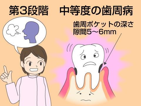 (第三段階)中等度の歯周病