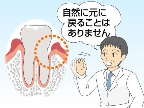 歯周組織再生療法とは