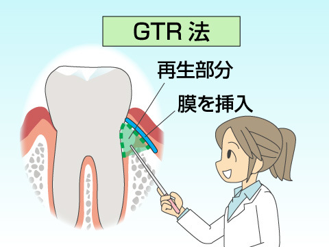 GTRを用いた治療方法
