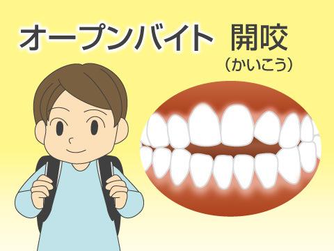 悪い歯並びを作り出した原因とは?