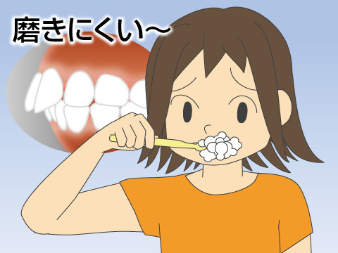 歯や顎への悪影響