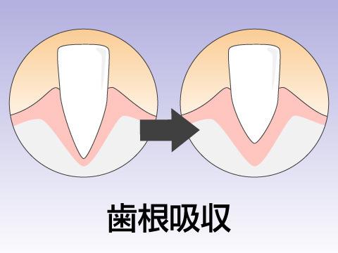 歯根吸収のおそれ