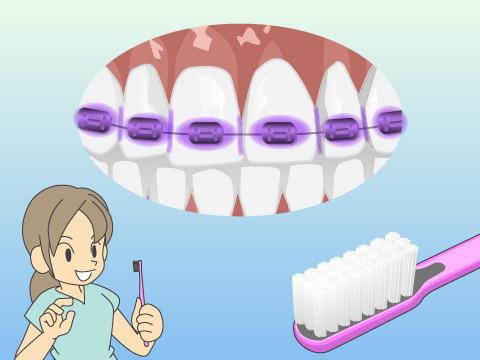矯正治療中の食後の歯みがきについて