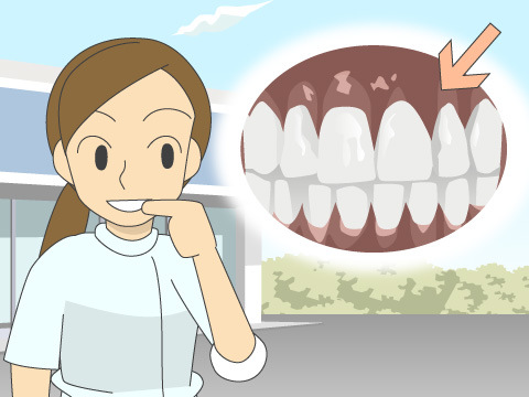 歯ぐきまでもきれいにできる審美治療