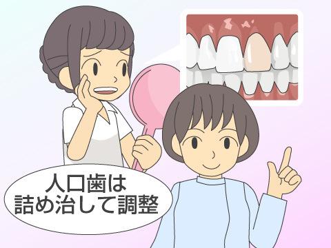 歯が白くならない場合もある!?