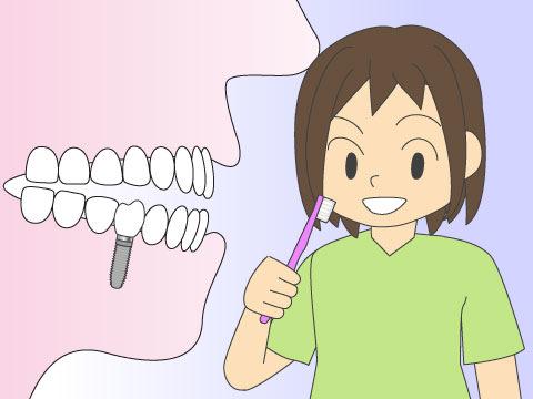 インプラントと、入れ歯・ブリッジとはどう違うのか