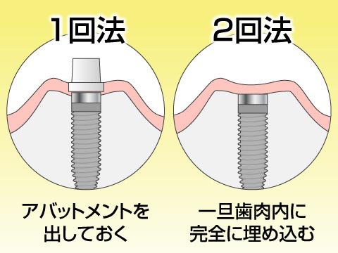 インプラント治療の種類