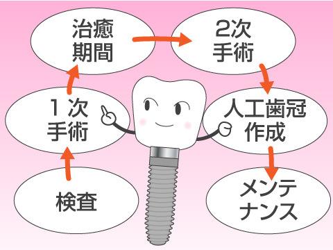 インプラント治療の手順(2回法の場合)
