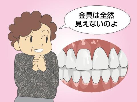 総入れ歯のメリット