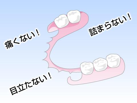 バネを使わない最新の入れ歯