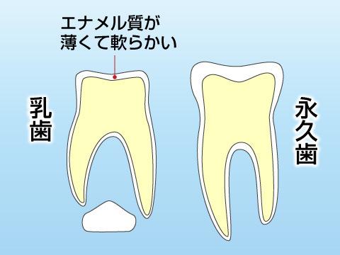子どもの虫歯の要因