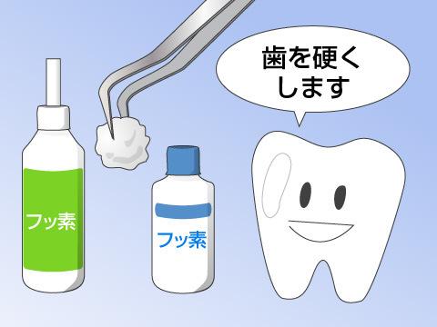 フッ化物塗布による虫歯予防