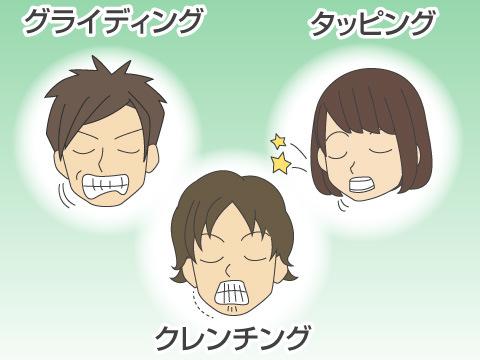3つに分けられる歯ぎしりの症状