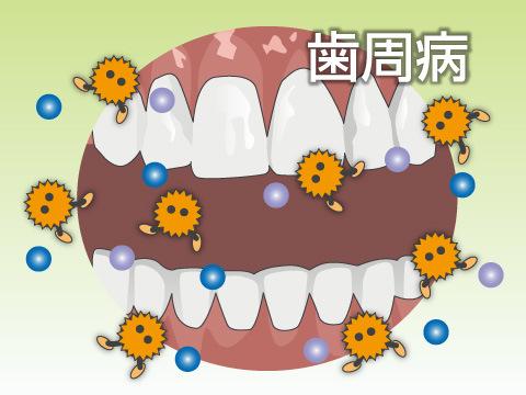 口の中の病気による口臭