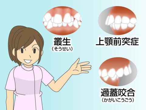 日本人の歯並びの特徴