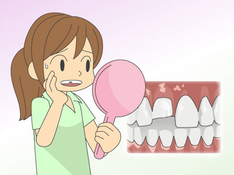 治療で入れた人工歯が欠けた